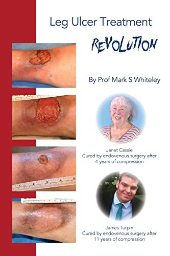 Leg Ulcer Treatment Revolution