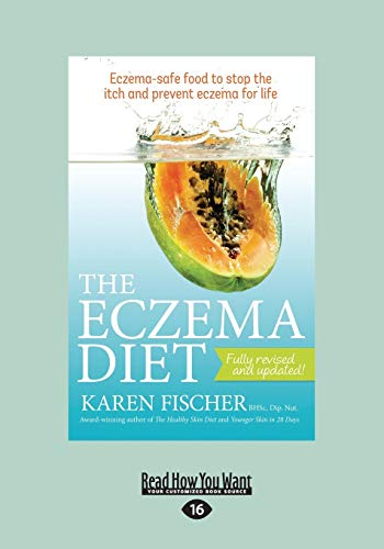 The Eczema Diet Eczema-Safe Food To Stop: Eczema-Safe Food to Stop The Itch and Prevent Eczema for Life