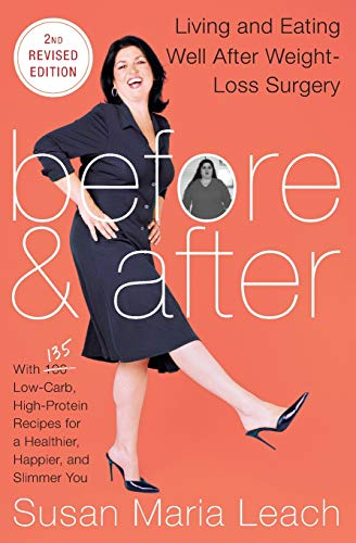 Before & After, Second Revised Edition: Living And Eating Well After Weight-Loss Surgery